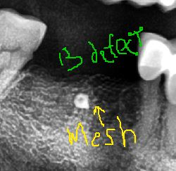 BUCCAL DEFECT. post extraction. Meshed + bone grafted to help maintain space an regen.